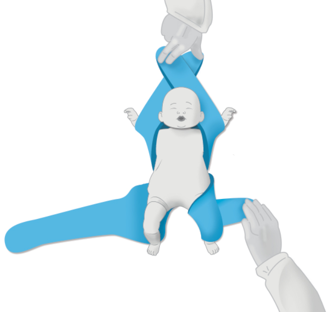 Two Arms and One Leg Hold - Pediatric Position Holder & Immobilizer