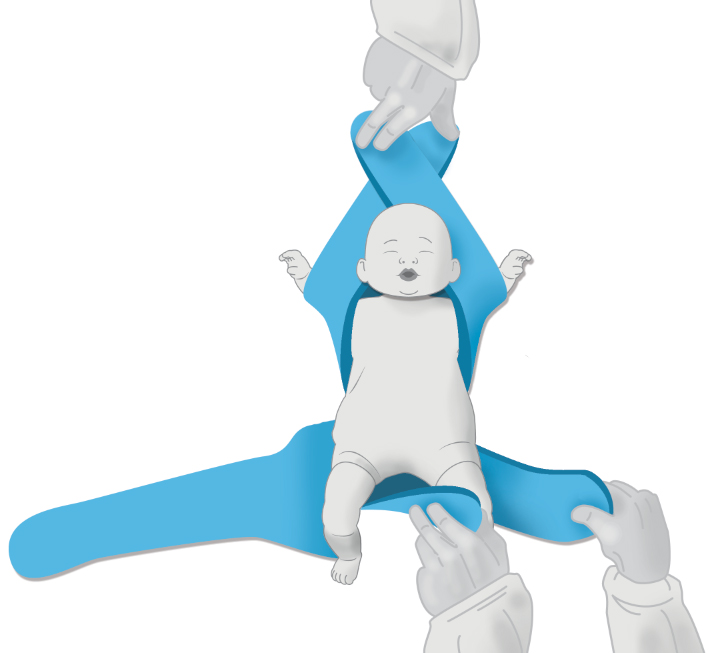 Two Arm Immobilization - Pediatric Position Holder & Immobilizer