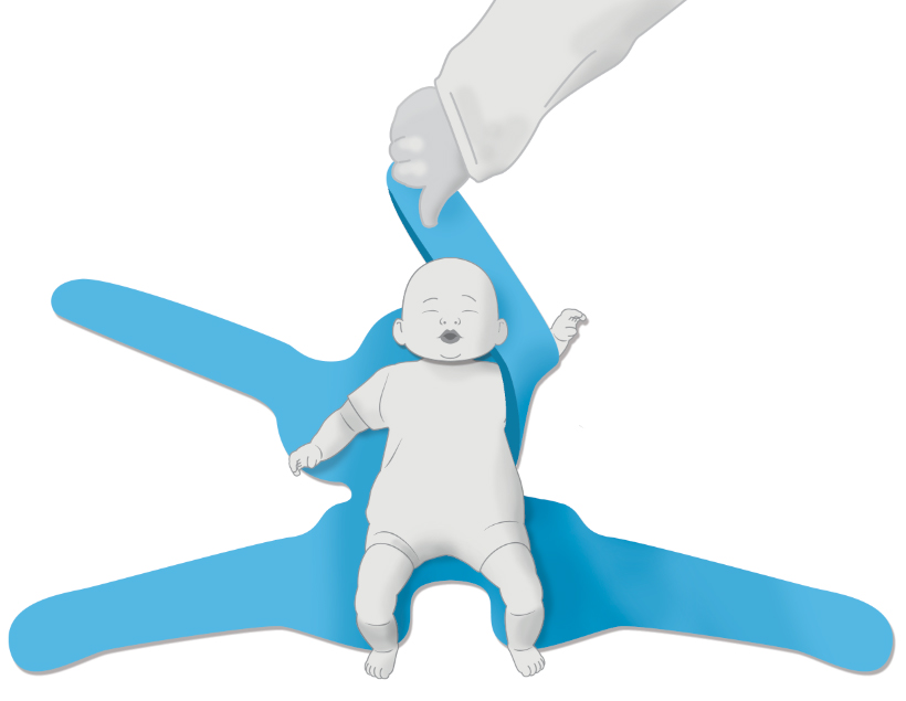 One Arm Hold - Pediatric Position Holder & Immobilizer