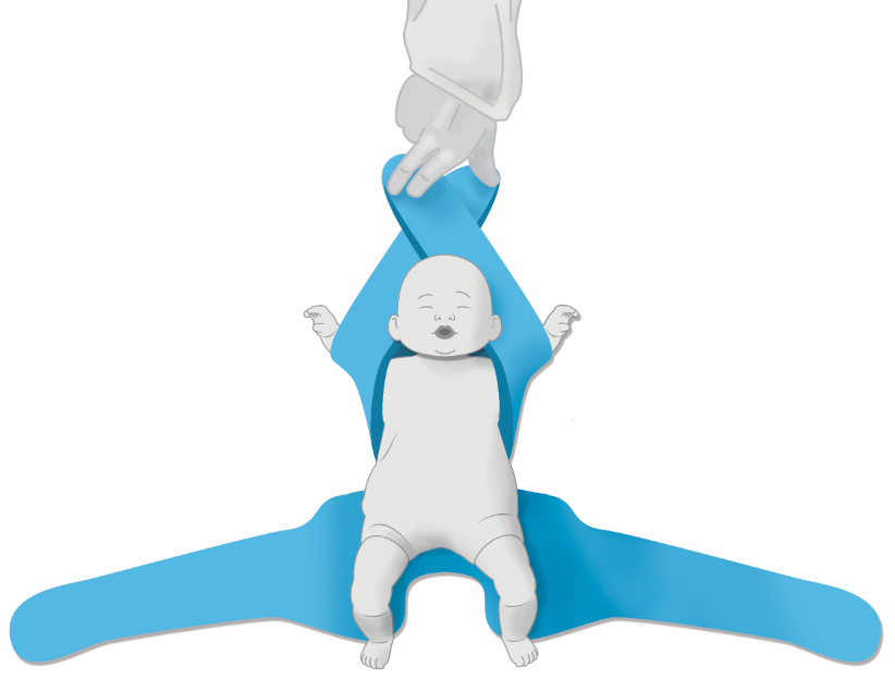 A Two Arm Hold - Pediatric Position Holder & Immobilizer